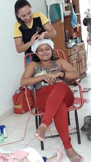 Tratamento Do Melasma No Rosto