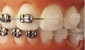 Ortodoncia Odontologo Limpieza Resina Bracket Dental