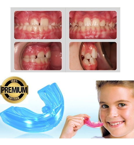 Ortodoncia Invisible Niños No Brackets  Agnovedades