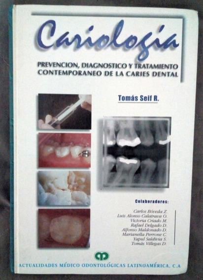 Cariologia - Prevencion, Diagnostico Y Tratamiento