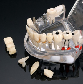 Modelo Boca Dentes Dentista Ensino Odonto