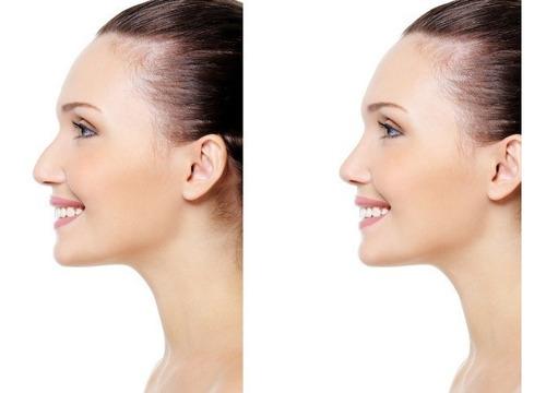 Corrector Nariz Bonita Pretty Nose Original Oferta ! S/24,90