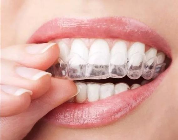 Kit 04 Moldeiras Termomoldavel Clareamento Dental