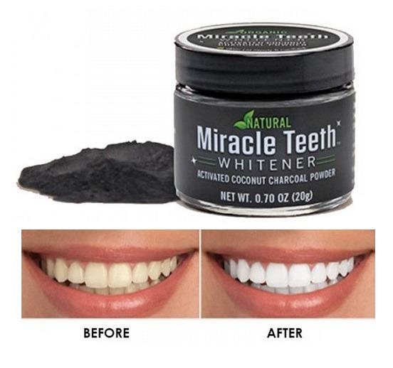 Carbon Activo En Polvo Blaqueador Dental White Dientes