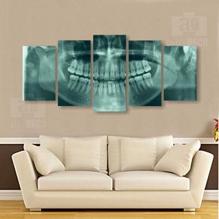 Cuadro Decorativo 5pzs Rx Dental #d0013 Alfadeco