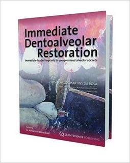 Immediate Dentoalveolar Restoration Pasta Dura Dentis Sellad