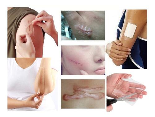 Parche De Gel Cesárea Queloides Cicatrices 10x20 Agnovedades