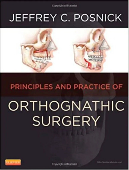 Orthognathic Surgery: Principles And Practice .. Eb.