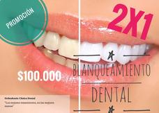 2 X 1 En Blanqueamiento Dental