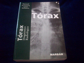 Torax Diagnóstico Radiológico
