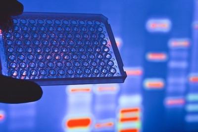 Secuenciación Completa Del Genoma (30x Wgs) - Adn