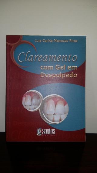 Livro Clareamento Com Gel Em Despolpado - Editora Santos