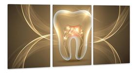 Quadro 60x120cm Dente Dourado Odonto Clínica Dentista Salas