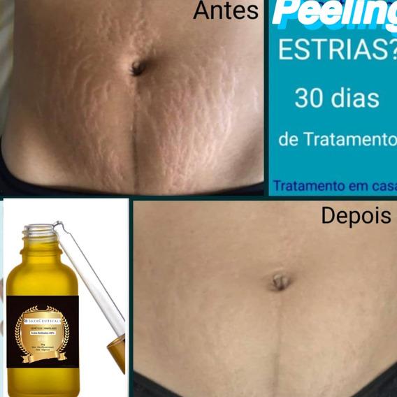Removedor De Estrias 30ml Acido Retinoico 40% + Brinde