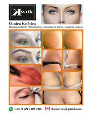 Camufle De Estrias Y Microblending Y Micropigmentacion