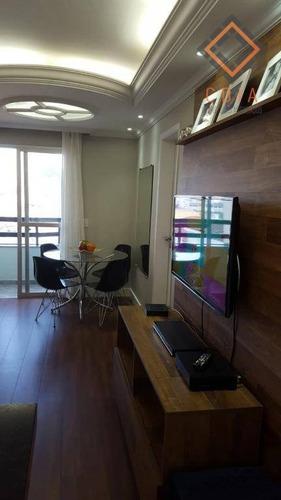 Apartamento Com 2 Dormitórios À Venda, 65 M² Por R$ 383.000,00 - Jabaquara - São Paulo/sp - Ap49734