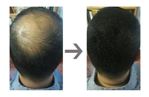 Toppik Hair 27,5g Queratina - Pó Maquiagem Cabelo Calvície