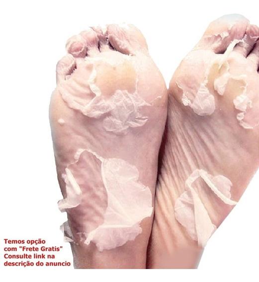 Esfoliante Peeling Pés De Bebe Meias Tipo Footner - 1 Par