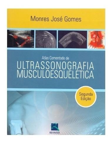 Atlas Comentado De Ultrassonografia