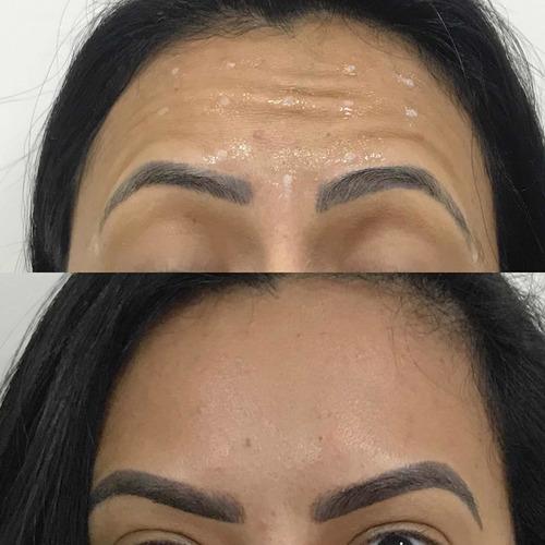 Imagem 1 de 1 de Aplicação De Botox