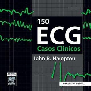 Ecg 150 Casos Clínicos 4e John Hampton *pdf*