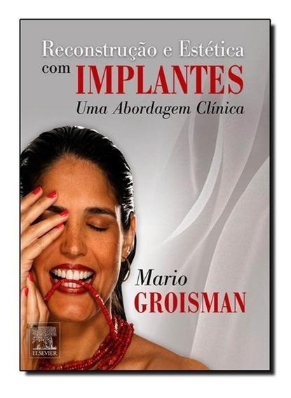Reconstrução E Estética Com Implantes