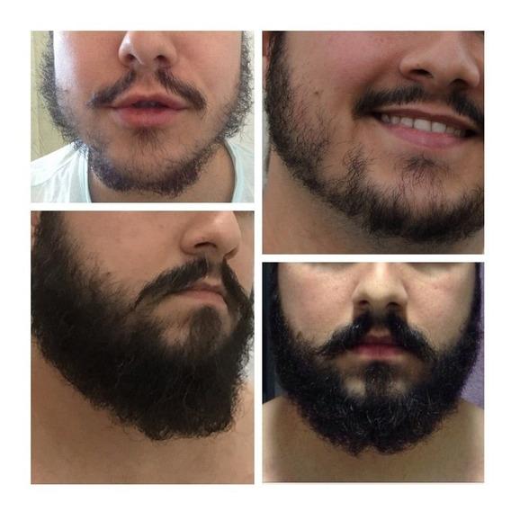 Produto P/ Crescer Barba E Cabelo..promoção 02 Frascos