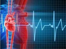 Electrocardiograma En Cali