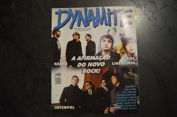 Dynamite 76 Keane Libertines Revista