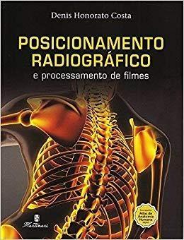 Posicionamento Radiográfico E Processamento De Filmes