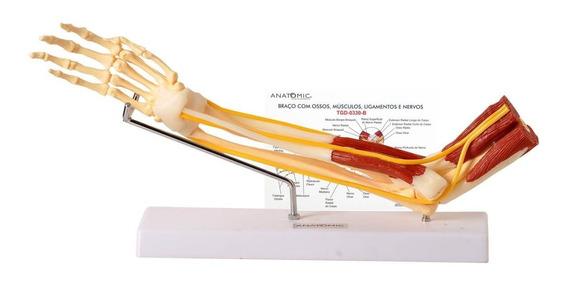 Braço Com Ossos, Músculos, Ligamentos E Nervos Anatomia