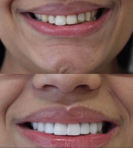 Imagem 1 de 4 de Implantes Dentários