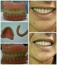 Protesis Dentales-placas Neuromiorelajantes
