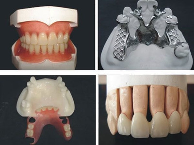 Laboratorio Dental Popular Prótesis A Domicilio Reparacion