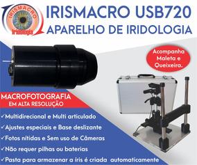 Software Iridologia + Pack 01 + Aparelho Irismacro Usb 720
