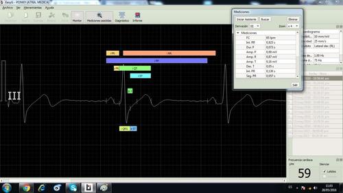 Software Easy G Para Electrocardiografos Temis