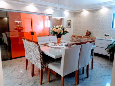 Casa Verde - Sp/zn - Apartamento Cobertura Duplex R$1.200.000,00 - Ap7172
