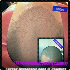 Micropigmentacion Masculina Capilar Alopecia Cicatriz .