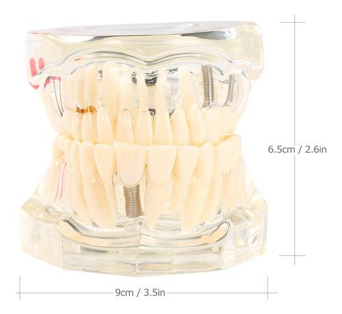Imagen 1 de 6 de Dientes De La Enfermedad De Implantación Dental Transparente