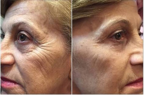 Instantly Ageless 50 Saches