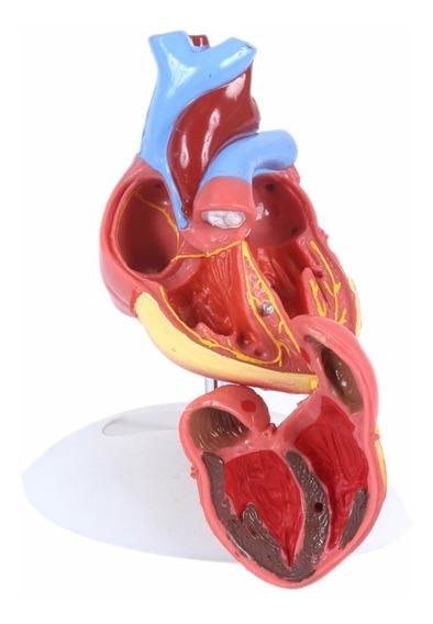 Coração Humano 2 Partes