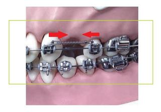 Resorte de traccion ortodoncia