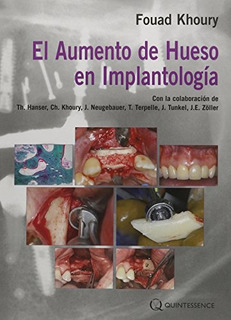 Libro : El Aumento De Hueso En Implantologia - Fouad Khoury