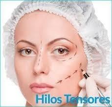 Hilos Tensores_lifting Sin Cirugía_rejuvenecimiento_ Arrugas