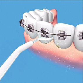 Irrigador Dental Limpeza Profunda Oralfloss Denteaparelho P5