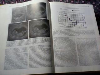 Libro: Ecografia En Obstetricia Y Ginecologia
