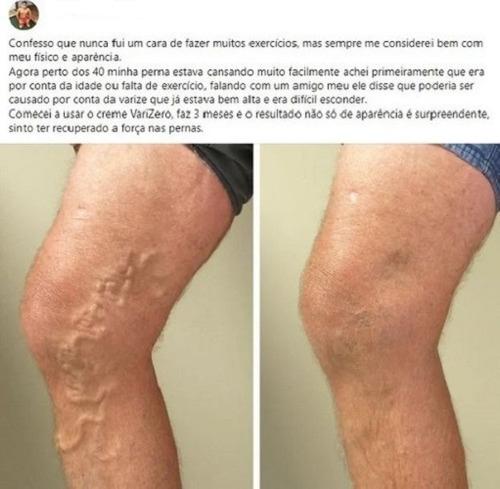 Ulcer varicos - ce trebuie să știi despre el și cum il tratezi