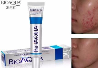 Bioaqua Acne Cream Cicatrices Poros Control De Grasa- T1275