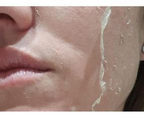 Acido Retinoico 40% 10 Ml(rosto)+ Tioglicolico 10%(olheiras)