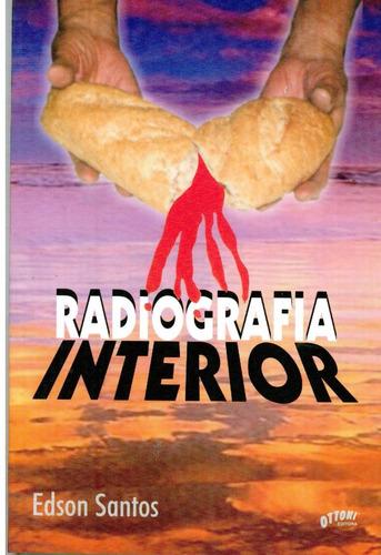 Radiografia Interior - Edson Santos